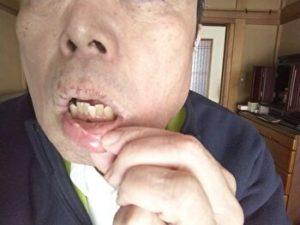 マクロビ玄米ダイエット健康法
